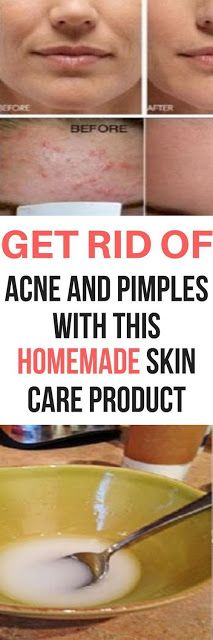 GET RID OF ACNE AND PIMPLES, ALLEVIATE SUNBURN AND IMPROVE COMPLEXION WITH THIS HOMEMADE SKIN CARE PRODUCT!