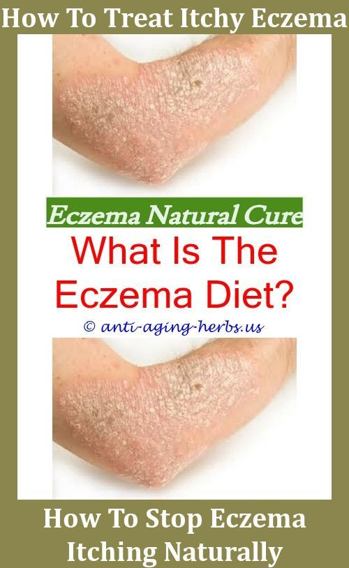 Red Light Therapy For Eczema Reviews,eczema between fingers