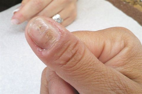 What is causing the deep horizontal ridges and swollen cuticles in my client's nails? - Nails Magazine