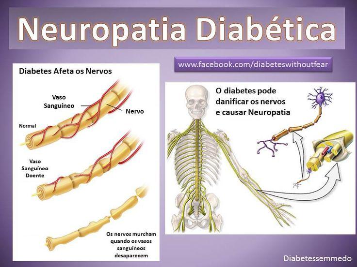 14 best Neuropatia images on Pinterest | Diabetes