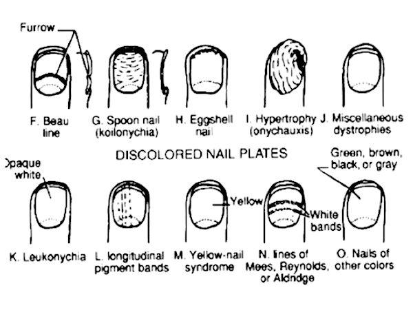 randiga naglar diagnos