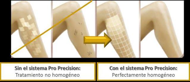 Con su rueda la Rowenta Derma Perfect Pro Precision EP9870 te permite controlar su potencia al milímetro. Te lo explicamos en nuestra prueba de tuguialaser.com #Depiladora #IPL #Fotodepilacion #Laser #Casera #Personal #Depilacion #Laser #Rowenta #DermaPerfect #ProPrecision