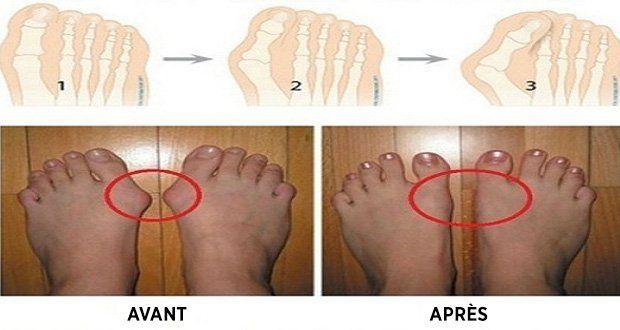 Voici 5 remèdes maison pour soulager les articulations enflées et traiter les oignons aux pieds (hallux valgus) naturellement, sans avoir recours à la chirurgie.MK: soigner les oignons aux pieds, traiter l'hallux valgus naturellement, déformation du pied, douleurs aux orteils