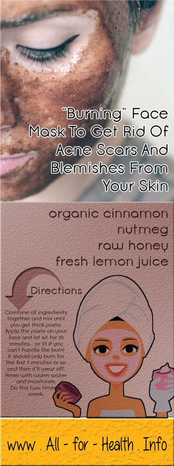 Acne scars are the result of inflamed blemishes caused by skin pores engorged with excess oil, dead skin cells and bacteria. If there is a deep break in the wall of the pore, infected material can spill out into surrounding tissue, creating deeper lesions.