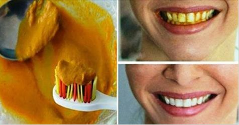 Natural Homemade Toothpaste That Can Heal Cavities, Gum Disease, And Whiten Teeth! 100% Efficient!