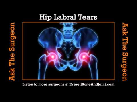 Water Exercises For Hip Replacement Patients