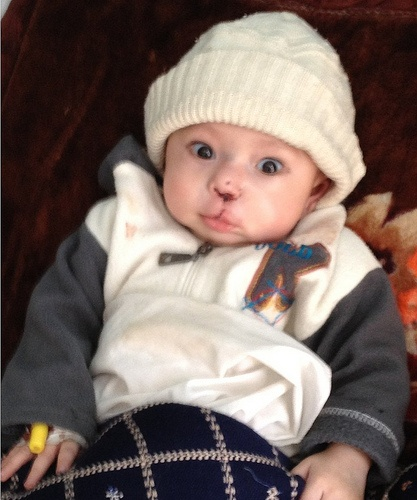 Baby Ali after his cleft lip surgery at a Cure International Hospital in his home country of Afghanistan