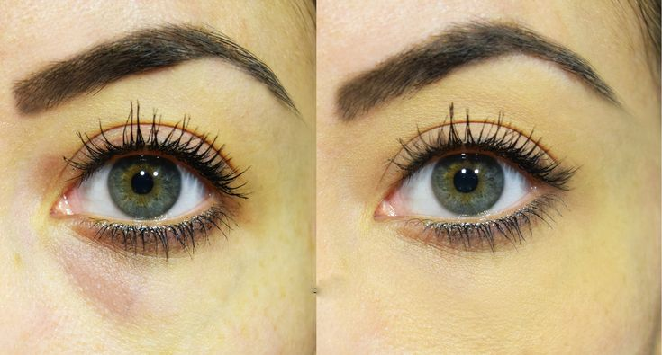 Le occhiaie e le cosiddette borse sotto gli occhi fanno apparire più stanche di quanto lo siamo in realtà. Esistono diversi rimedi naturali per eliminare q