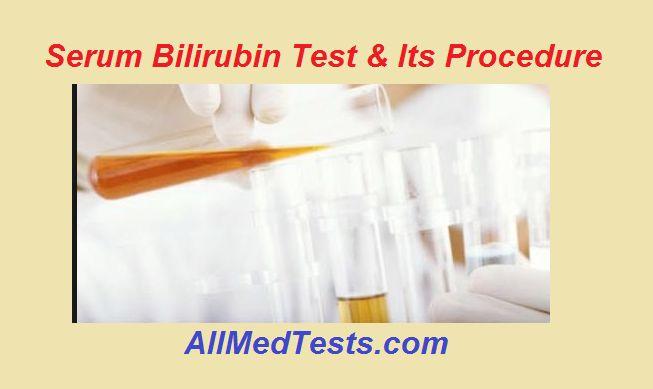 Serum Bilirubin Test With Jendrassik & Grof's Method