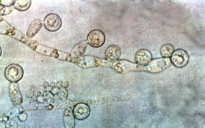 Signs of vaginal yeast infectionhttp://beatcandida.com/vaginal-yeast-infection-symptoms-causes/