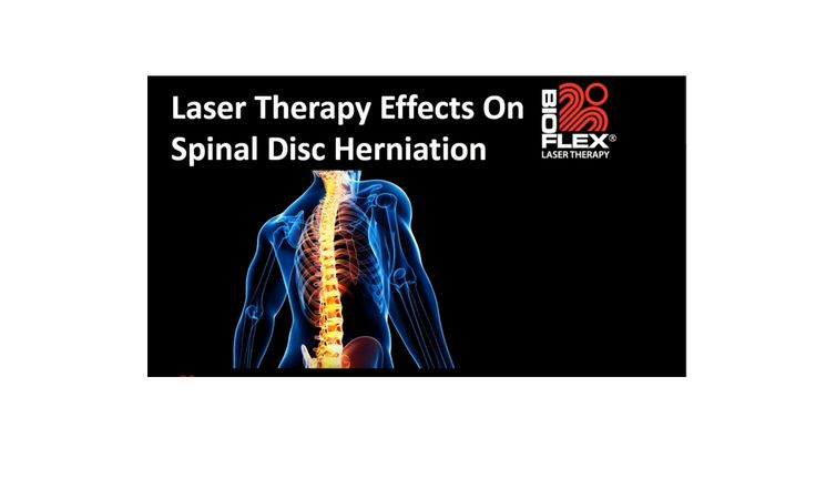 One of the Free monthly webinars BioFlex Laser offers: Laser Therapy Effects On Spinal Disc Herniation