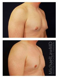 "Gynecomastia can occur on one side of the chest or on both. The minimal form of gynecomastia is that of a protruding nipple/areola complex, sometimes referred to as ""puffy nipples"" (but which would more correctly be called ""puffy areolas""), which is very common in adolescent and post-adolescent young men. http://www.michaellawmd.com/gynecomastia-male-breast-reduction.html #gynecomastia #malebreastreduction"