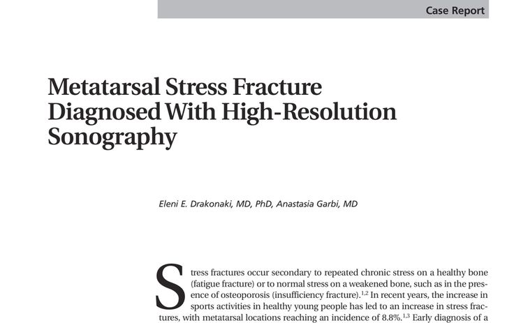 51 best diagnostic msk ultrasound images on pinterest ultrasound metatarsal stress fractures how can we improve diagnosis at the first point of contact stress fractureultrasoundpdfcontent fandeluxe Choice Image