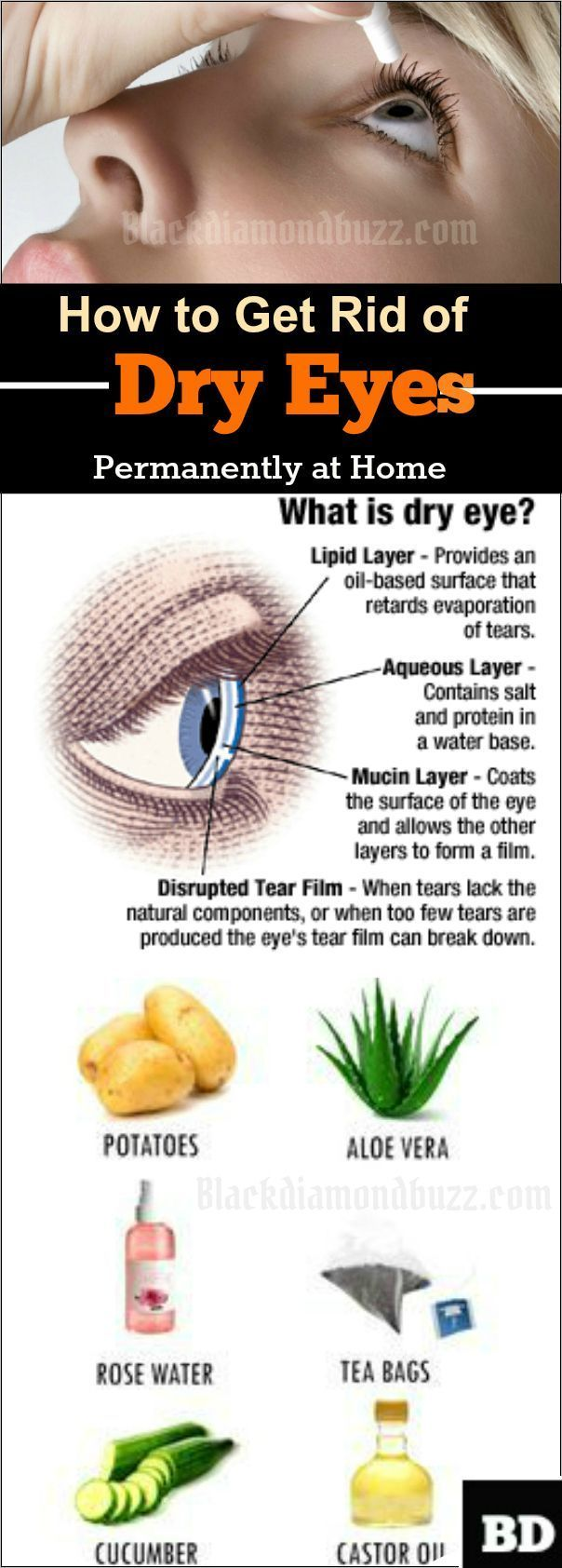 Dry Eyes Remedies- Do you want to fix your dry eyes and cure it naturally?Here are best home remedies for dry eyes relief at home.These natural treatments for dry eyes will get rid of dry eyes permanently and you will be relieved from dry eyes symptoms.