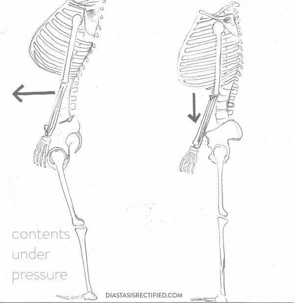 Changing Habits for Diastasis Recti Healing | sketch of skeletons, one with rib thrust, one without