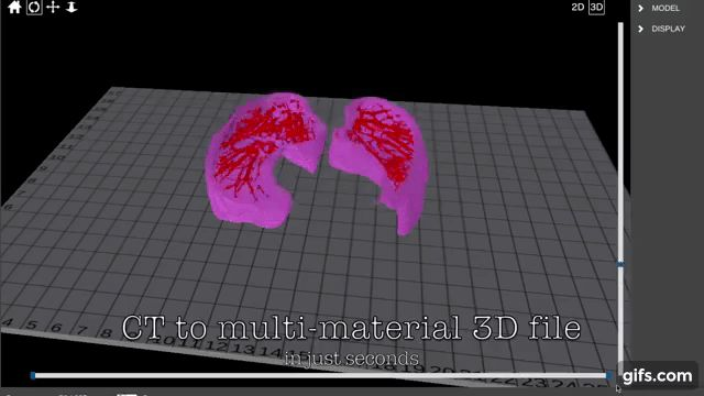 Simulation of an AI generated lung model, from CT scan to 3D printable model. Clip via Aether 3D Bioprinter on YouTube