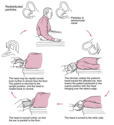 Self Help Exercises Vertigo