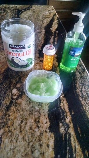 "Amazing Concoction! Works wonders on sunburns, stretch marks, etc. - 8 tablespoons of Aloe Vera (I used the gel) - 4 tablespoons of (organic) Coconut Oil -The ""gel"" from 20 vitamin E tablets. Combine and stir all ingredients together. Apply as needed."