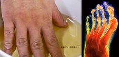 Mia mamma aveva l'articolazione di un dito ingrossata e il medico disse essere un'artrosi, quindi, non curabile. Dopo neanche una settimana di immersione quotidiana in acqua e aceto di mele
