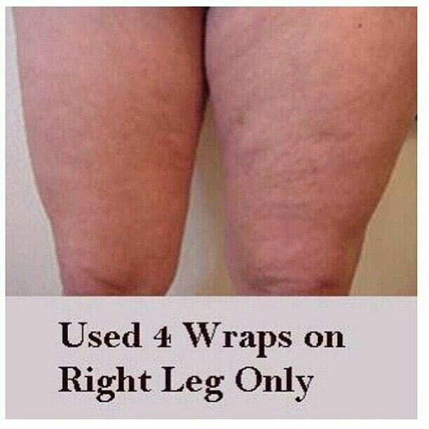 how to get rid of skinny legs