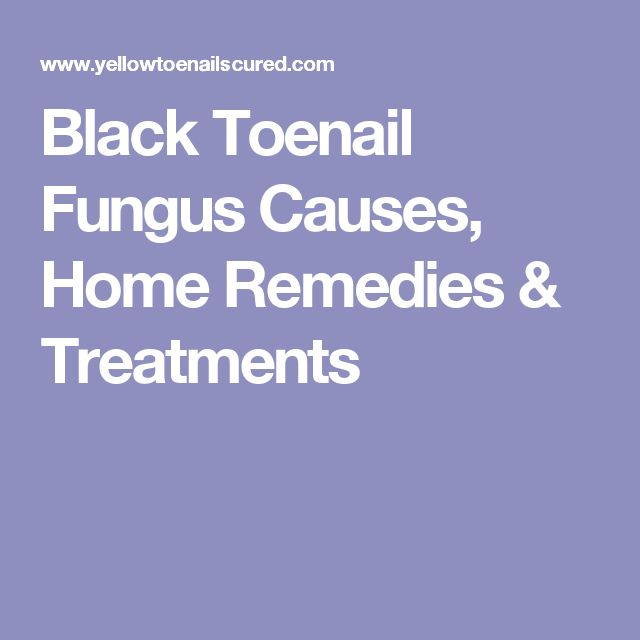 Black Toenail Fungus Causes Home Remedies Amp Treatments