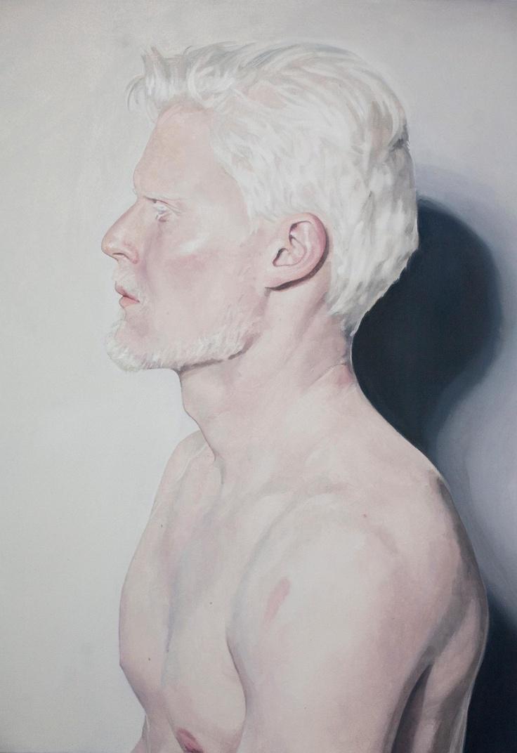 albino guys