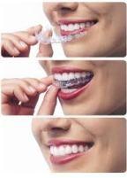 Brea Invisalign Clinics: Your Teeth's Invisible Help