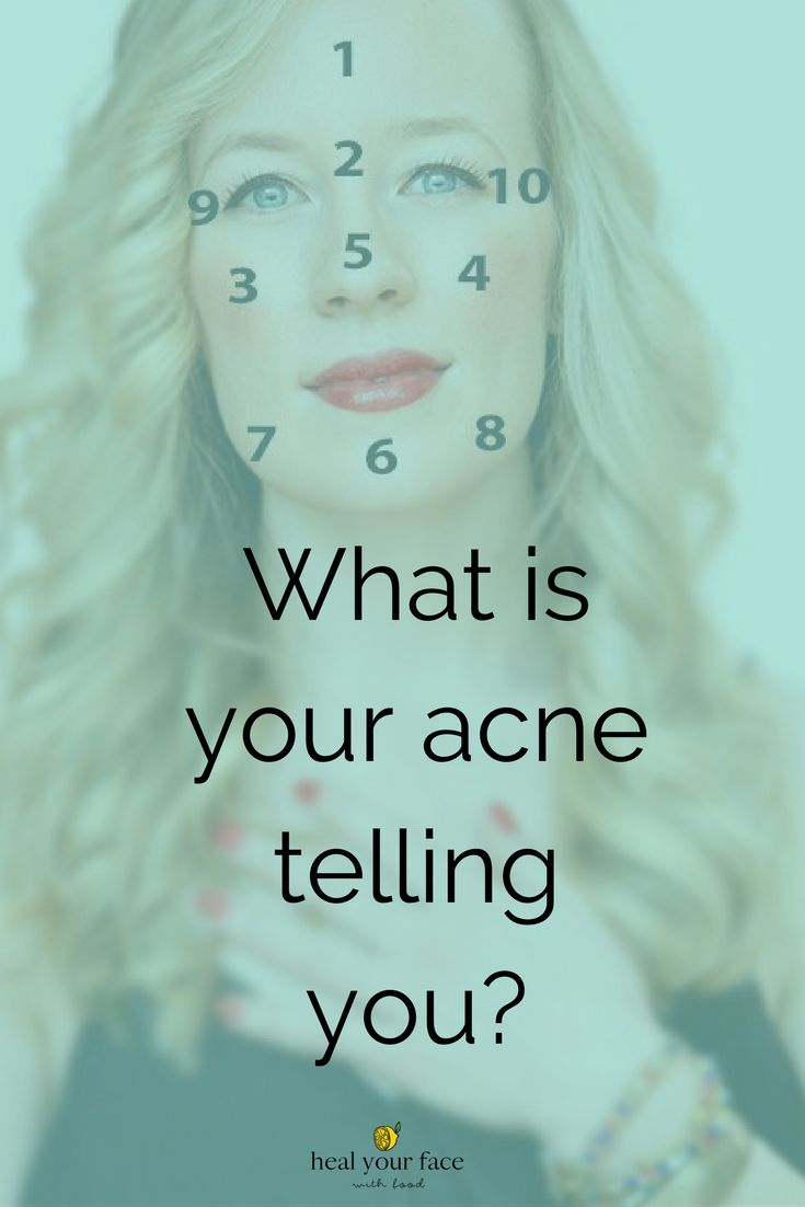 Heal your acne naturally with this free facemapping guide