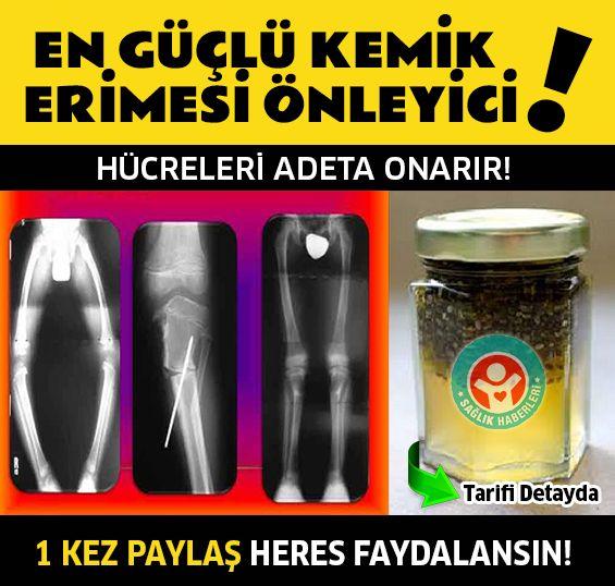 Kemik erimesine son vererek eklem ağrılarınızdan kurtulun‼️ Tarifler Detayda  #sağlık #saglik #sağlıkhaberleri #health #healthnews #kemikerimesi #osteoporoz