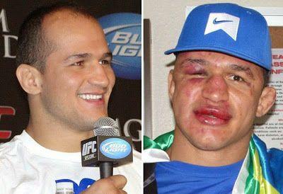 Visages de combattants de lUFC avant après combat   visages de combattants de l ufc avant apres combat 5