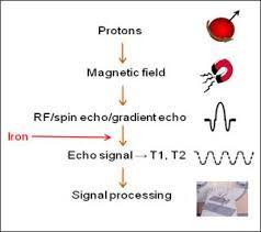 protonen + MRI - Google zoeken