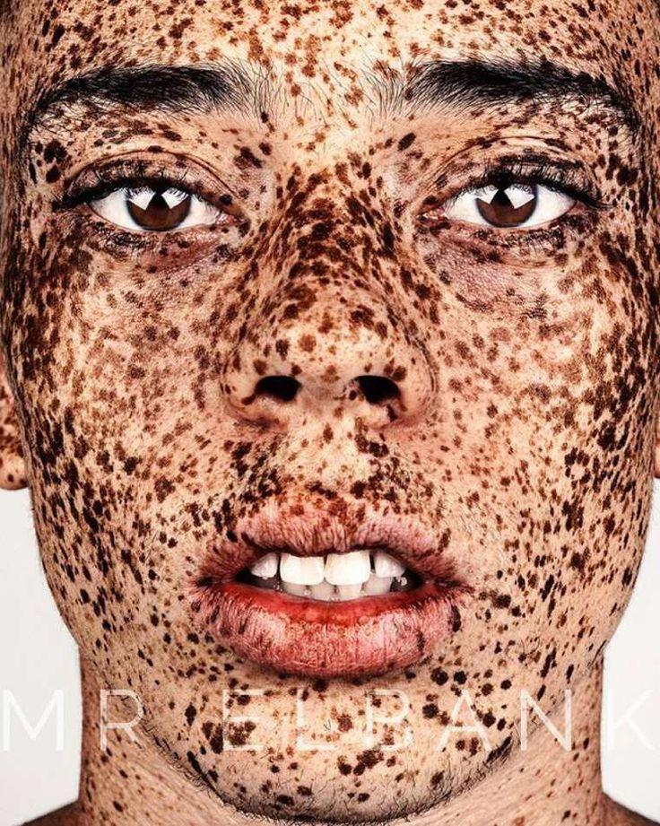 Que lon peut décolorer les taches de pigment sur la personne