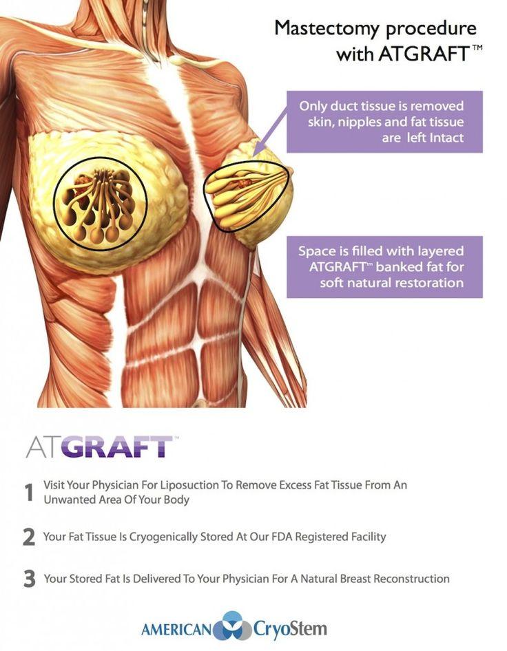 24 best Stem Cell Breast Procedures images on Pinterest   Stem cells ...
