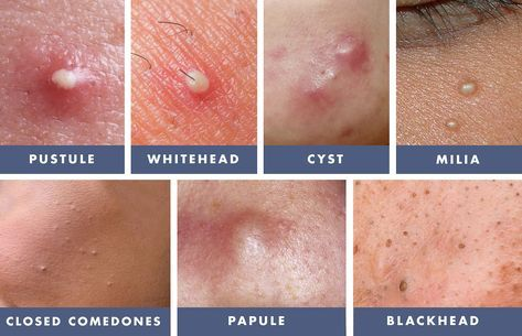 Updated 2/1/18. Skin Fact: All types of acne and blemishes are not equal. You must learn the differences between whiteheads, blackheads, pustules, papules, milia, closed comedones and cysts, and treat them accordingly to make them go away fast with the … Continued