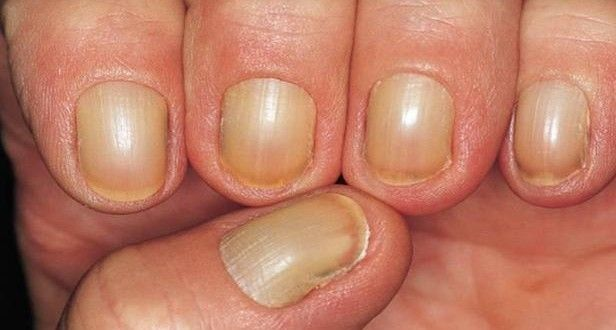 How to Get Rid of Yellow Nails?