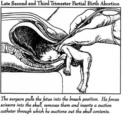 abortion | Stop Abortion In Rocky River .Com . . . this sounds like something from the Nazi's . . .