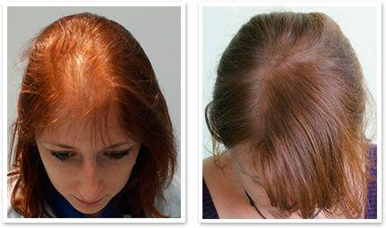Woman's Hair Capillum