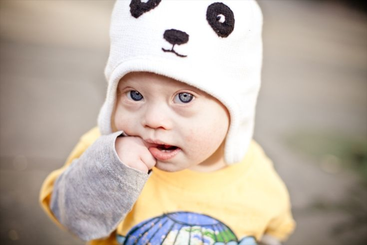 25,000 Reasons Not To Worry About The Results Of A Down Syndrome Screening Test -- just precious.