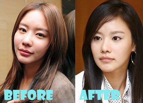 Kim Ah Joong Plastic Surgery Before and After Pictures, Pictures