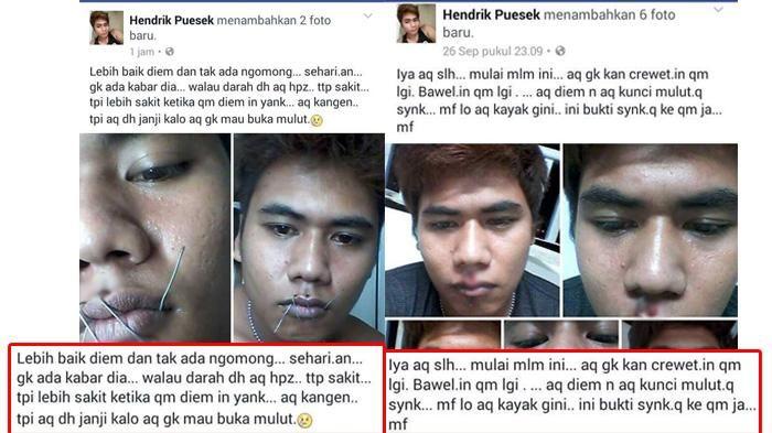 Viral di Facebook - Miris, Pria Ini Rela Jahit Mulutnya Demi Minta Maaf Kepada Sang Pacar!