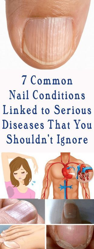 7 Common Nail Conditions Linked to Serious Diseases That You Shouldn't Ignore #nail #hair #beauty #health #fitness #diy #remedy #remedies