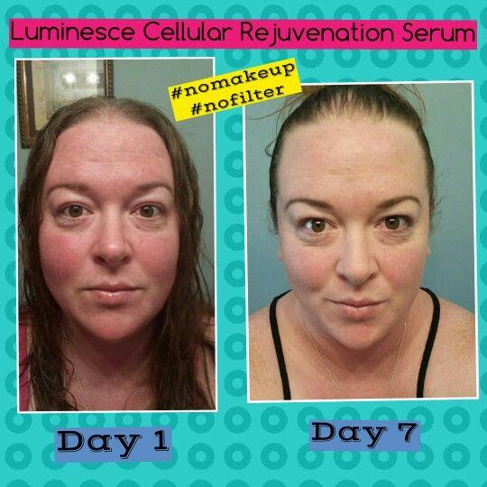 http://www.nmwyndham.jeunesseglobal.com Luminecse cellular rejuvination serum day 1 thru 7!