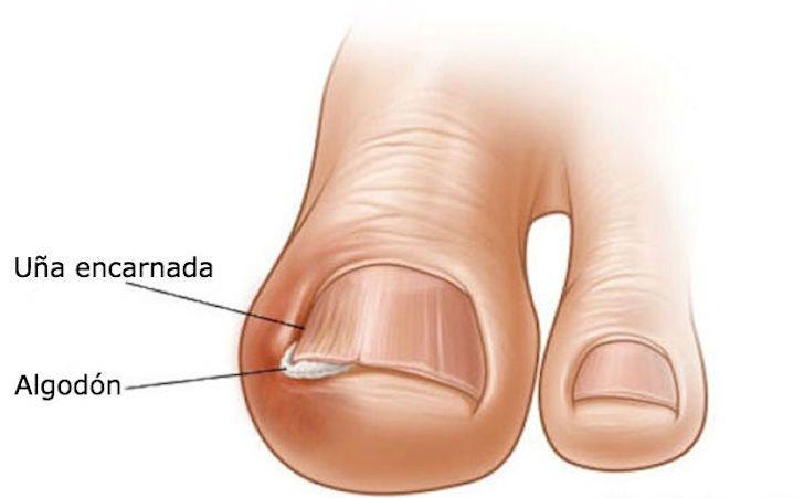 Estos sencillos trucos caseros te salvarán para siempre de las dolorosas uñas encarnadas http://www.upsocl.com/comunidad/estos-sencillos-trucos-caseros-te-salvaran-para-siempre-de-las-dolorosas-unas-encarnadas/?utm_source=FBppal&utm_medium=Facebook&utm_campaign=fb