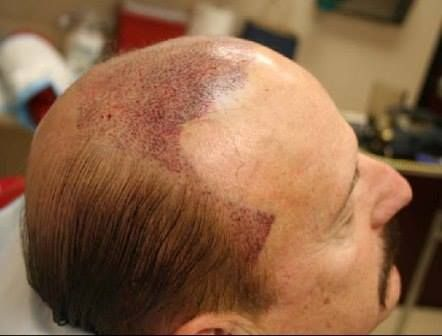 Visit our site http://www.hairlosscure2020.com for more information on Hair Loss Blog Hair Cloning is just one of the ways in which hair loss has actually been treated, and it is something that has been discussed for many years. It has been told by experts and various other researchers that it will be the future of hair transplant.