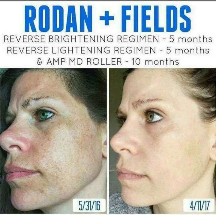 The Ultimate Skincare Routine To Fix Uneven Skin Tone And Reverse Sun Damage Remove Dar Rodan And Fields Business Rodan And Fields Rodan And Fields Consultant