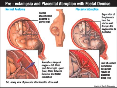 pregnancy induced hypertension and pre eclampsia Gestational hypertension and preeclampsia both are conditions occurring during pregnancy gestational hypertension is also called as.