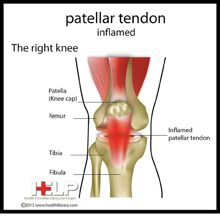 Patellar Tendon Inflamed | Skeletal | Pinterest