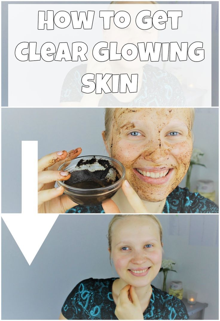 Video on how to get clear glowing skin. glowing skin, Crystal Clear Glowing Skin, Spotless Skin, Pimple removal diy, skin care diy, how to get glowing skin, skin whitening glow, DIY home remedy, pimple diy, how to get spotless skin naturally at home, get