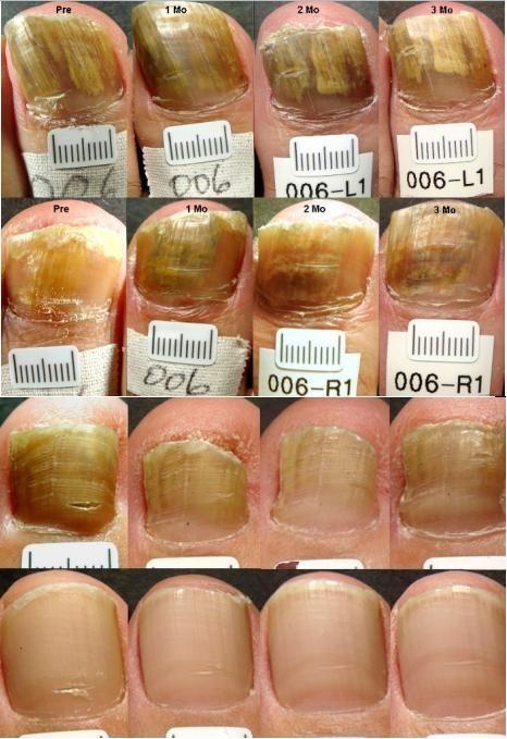 can lamisil treat nail fungus