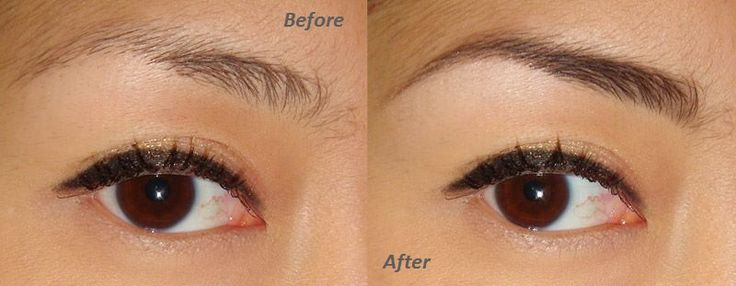 See how this girls eyebrow comes out better with Beautiful Brows!